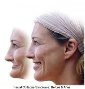 facial collapse