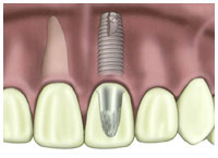 A dental implant.