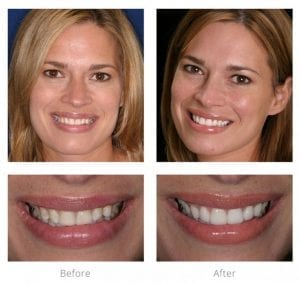 Dr. Arnold patients beautiful smile