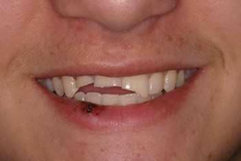 Man's mouth with 3 front top teeth chipped at the bottom.