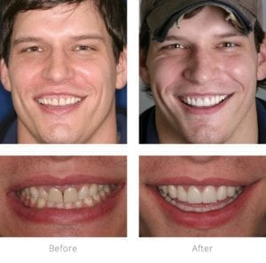 A before and after picture of one of Dr. Arnold's smile makeover patients.