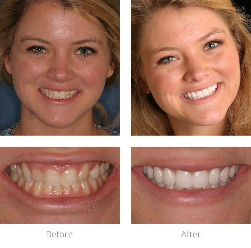 Before and after picture of a girl smiling with a before and after close-up of her teeth.