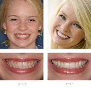 Smile case study before and after image.