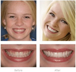 before and after -Arnold Dental- Lexington Cosmetic Dentist