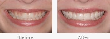 smile gallery of Lexington cosmetic dentist Dr. Arnold