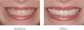 smile gallery of Lexington, KY cosmetic dentist Dr. Arnold