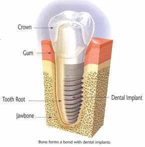 Lexington Dental Implants
