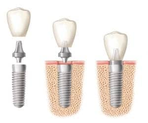 An illustration of three dental implants with the implant crowns being placed