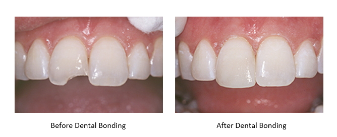 images showing before and after dental bonding for a chipped tooth