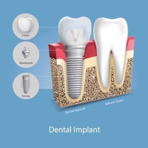 Image of a dental implant next to a natural tooth
