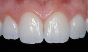 The texture of natural teeth